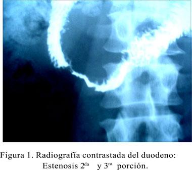 Duodenopancreatectomía laparoscópica mano asistida: Reporte de un caso