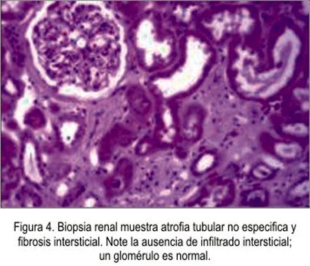 fotos acido urico en los pies acido urico alto y dolor de rodillas pina y apio para acido urico