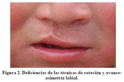 Técnica quirúrgica para el tratamiento de fisuras labiales ...