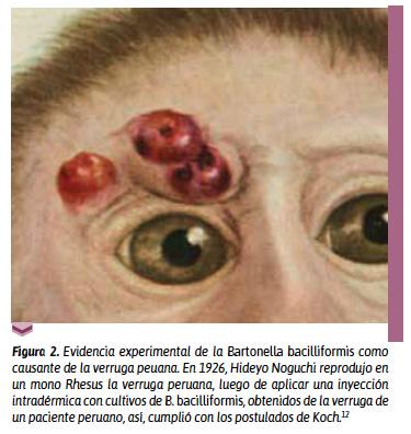 La nueva Bartonella ancashi como causante de la verruga