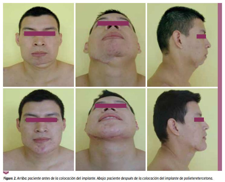 Reconstrucción mandibular con implante hecho a medida de ...