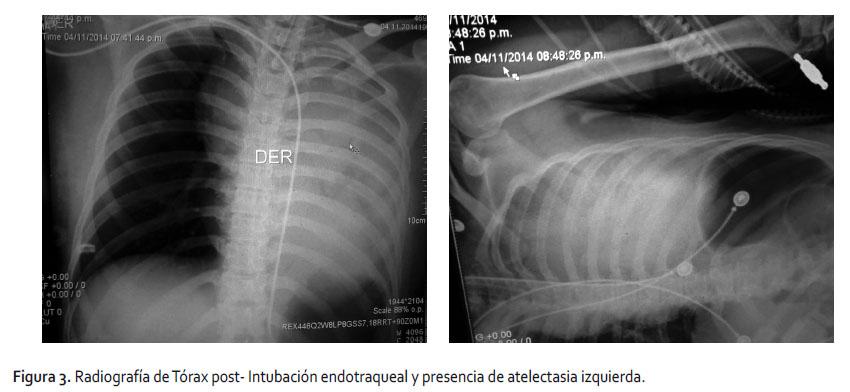 Atelectasia Aguda Subita Pulmonar Izquierda Por Linfoma No