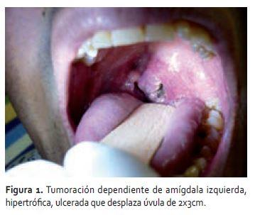 papiloma cancer boca pastile de paraziți umani