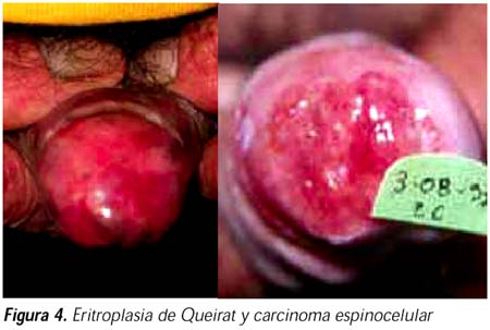 http://www.scielo.org.pe/img/revistas/dp/v15n3/a04fig04g.jpg