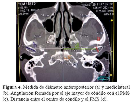 Morfología ósea de la articulación temporomandibular en pacientes ...