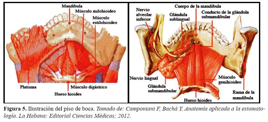 Evaluación anatómica del piso de boca mediante resonancia magnética