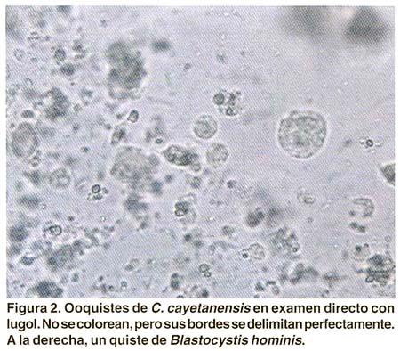 Ciclosporosis: una parasitosis emergente (II). Diagnóstico ...