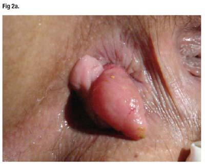 papiloma fibroepitelial tratamiento)