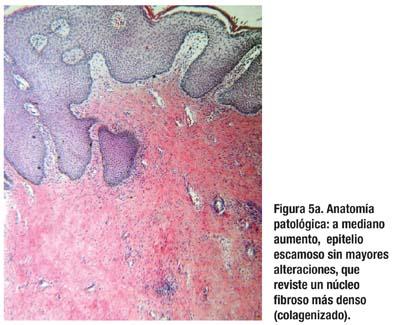 Lesiones Fibroepiteliales del Canal Anal: alternativa terapéutica ...