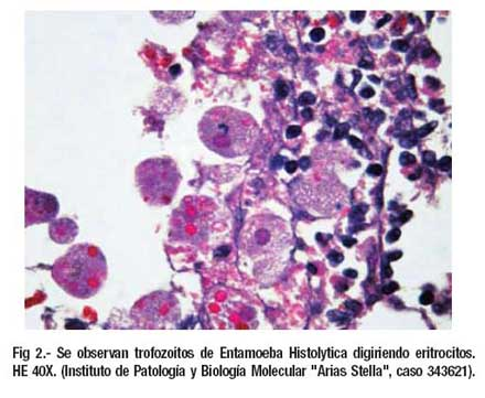 Biopsia de colon: características histológicas en diferentes tipos ...