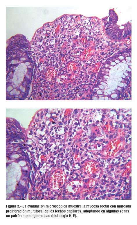 Rectorragia intermitente por Hemangioma Difuso de recto