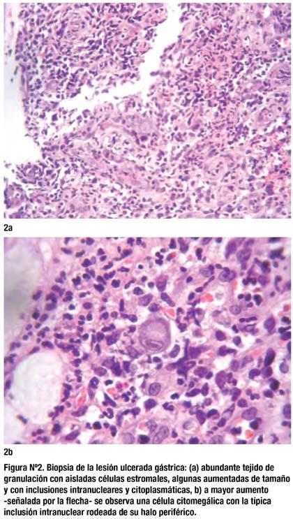 Úlcera gástrica gigante por citomegalovirus en infección VIH/SIDA