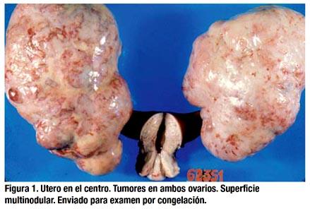 Tumor De Krukenberg Del Ovario Estudio Clinico Patologico De 56