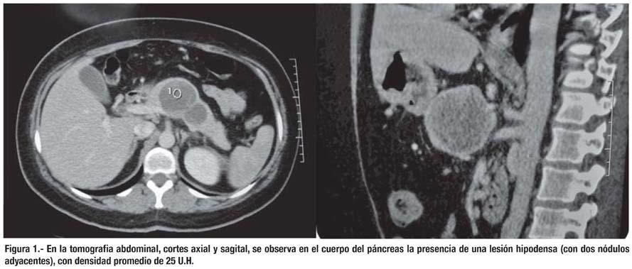 Tumor de Frantz: neoplasia sólida pseudopapilar de páncreas