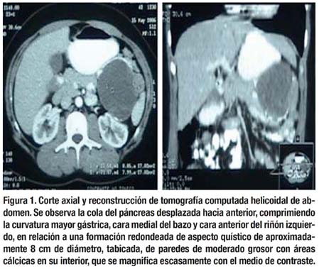 Tumor sólido-peudopapilar del páncreas: presentación de 3 casos clínicos