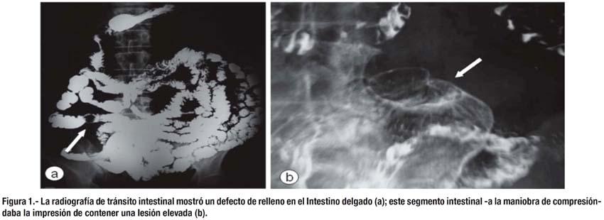 Sangrado digestivo oscuro por tumor carcinoide ileal