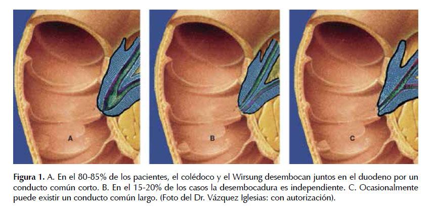 Colangiopancreatrografía retrógrada endoscópica: una técnica en ...