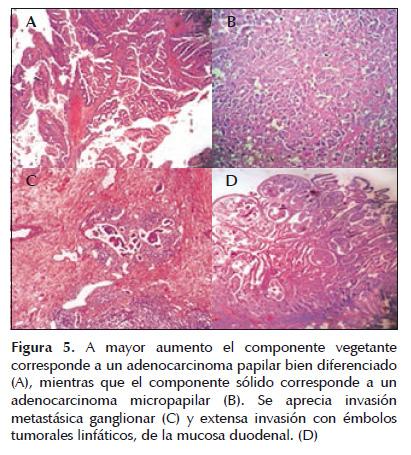 Pancreatoduodenectomía durante el embarazo por adenocarcinoma de ...
