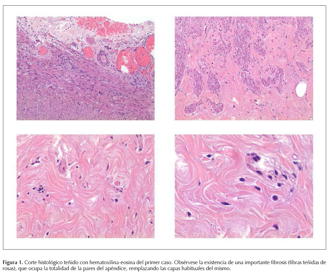 Appendicular fibrosis, exceptional histological finding of recurrent ...