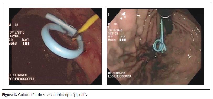 Drenaje por endosonografía de colecciones pancreáticas, revisión de ...