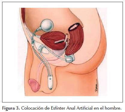 Tratamiento de la incontinencia fecal severa con esfinter artificial ...