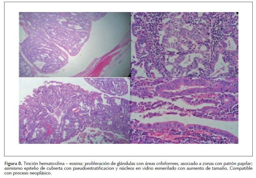Colangiocarcinoma en tercio medio de la vía biliar principal tratado ...