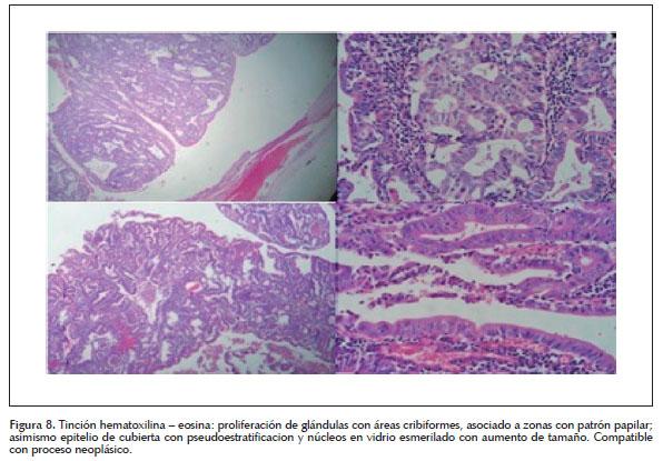 Colangiocarcinoma En Tercio Medio De La V 237 A Biliar