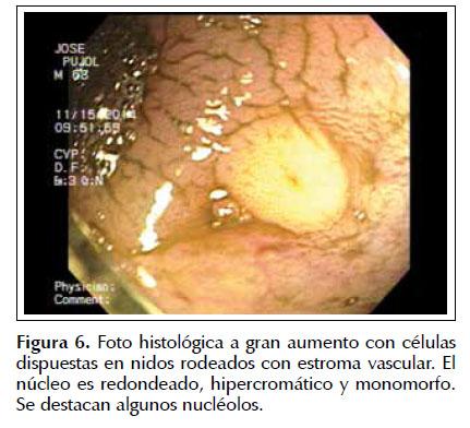 Tumor carcinoide: a propósito de dos casos clínicos