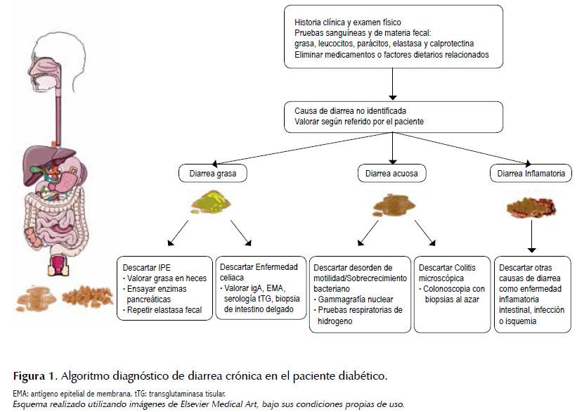 Diarrea Crónica En El Diabético Una Revisión De La Literatura