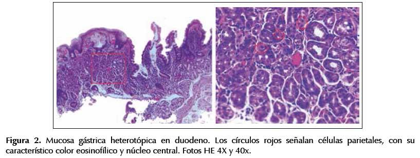 Mucosa gástrica heterotópica en duodeno: características clínicas ...