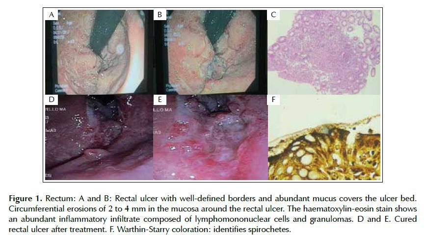 Sífilis rectal en un paciente con VIH de Perú