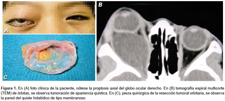 Tumor primario quístico de la órbita: a propósito de un caso de ...