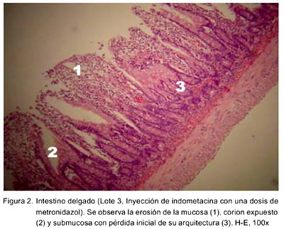 Estudio anátomo-histopatológico intestinal en el tratamiento con ...