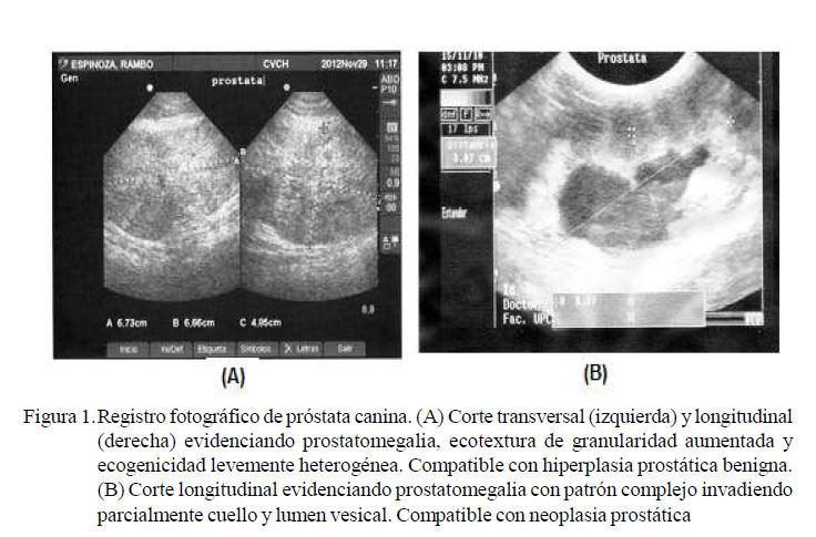 A longidase folyamata prosztatagyulladással