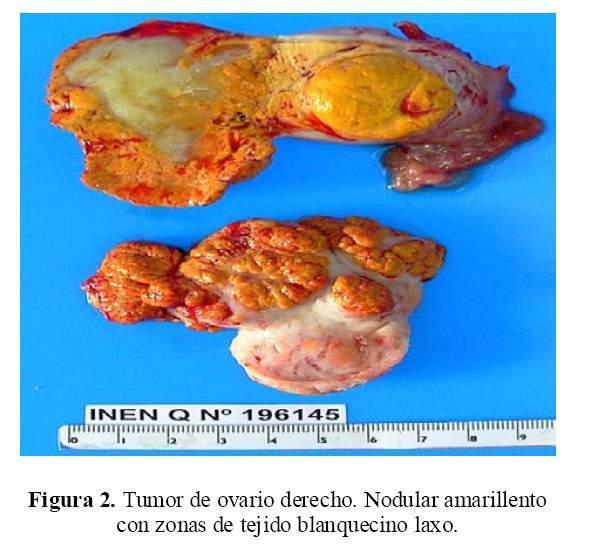 Tumor de células esteroideas de ovario: Reporte de un caso y ...