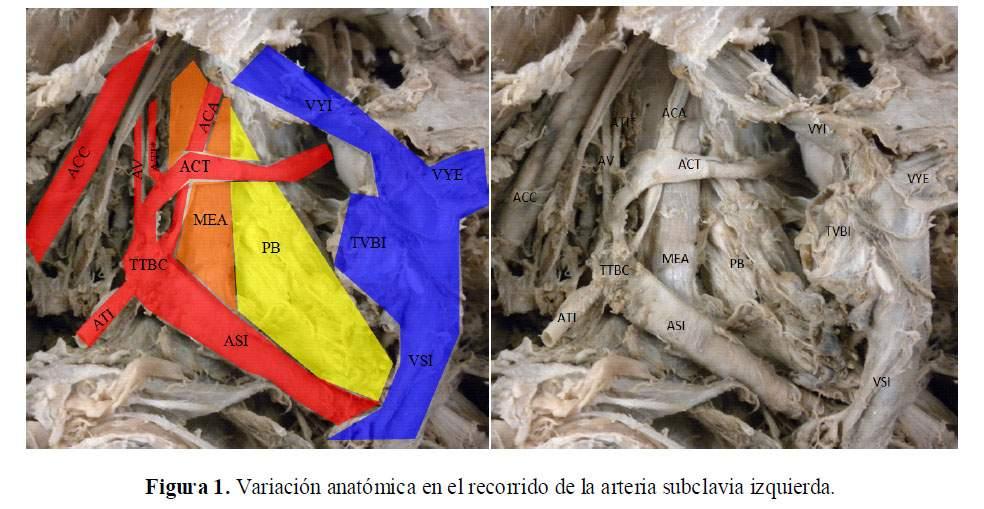 Variación anatómica de la arteria subclavia izquierda: Reporte de un ...