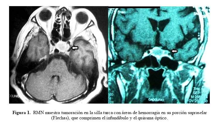 Apoplejía pituitaria con parálisis del III par craneal: Reporte de caso