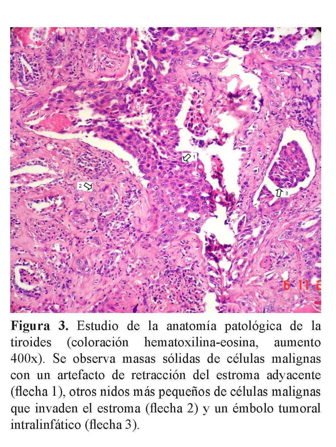 Cáncer anaplásico de tiroides: Reporte de caso