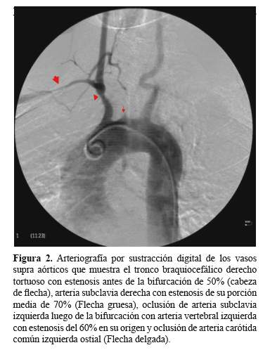 Arteritis de Takayasu: Etiología inhabitual de infarto cerebral ...